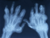 Xray of arthritic hands. Source: jnatiuk on Stock.xchng
